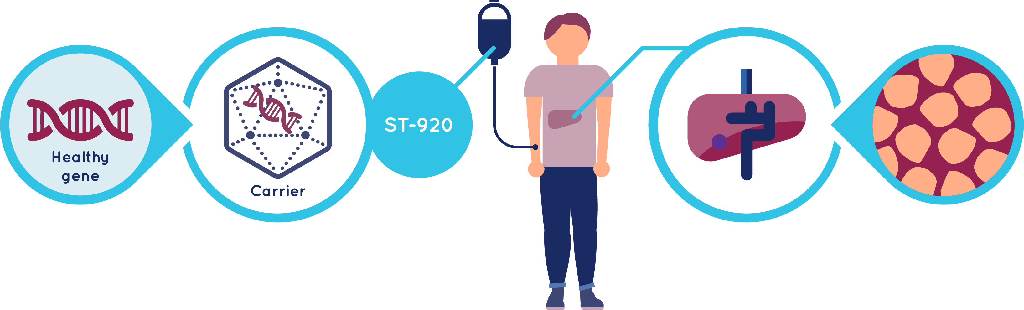 What is ST-920 and how does it work?